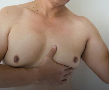علاج التثدي و ترهلاته من الدرجة الثانية
