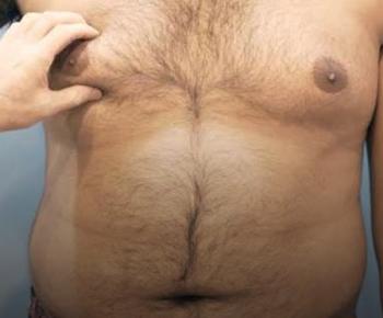 علاج التثدي من الدرجة الأولي